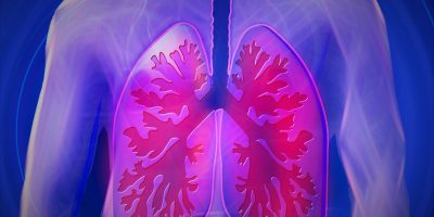 image_lung_cancer